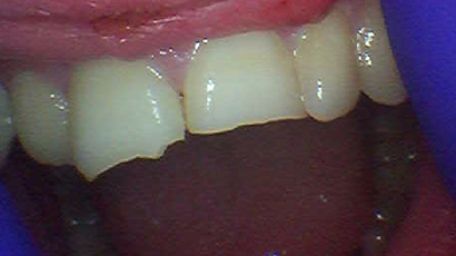 Before Treatment