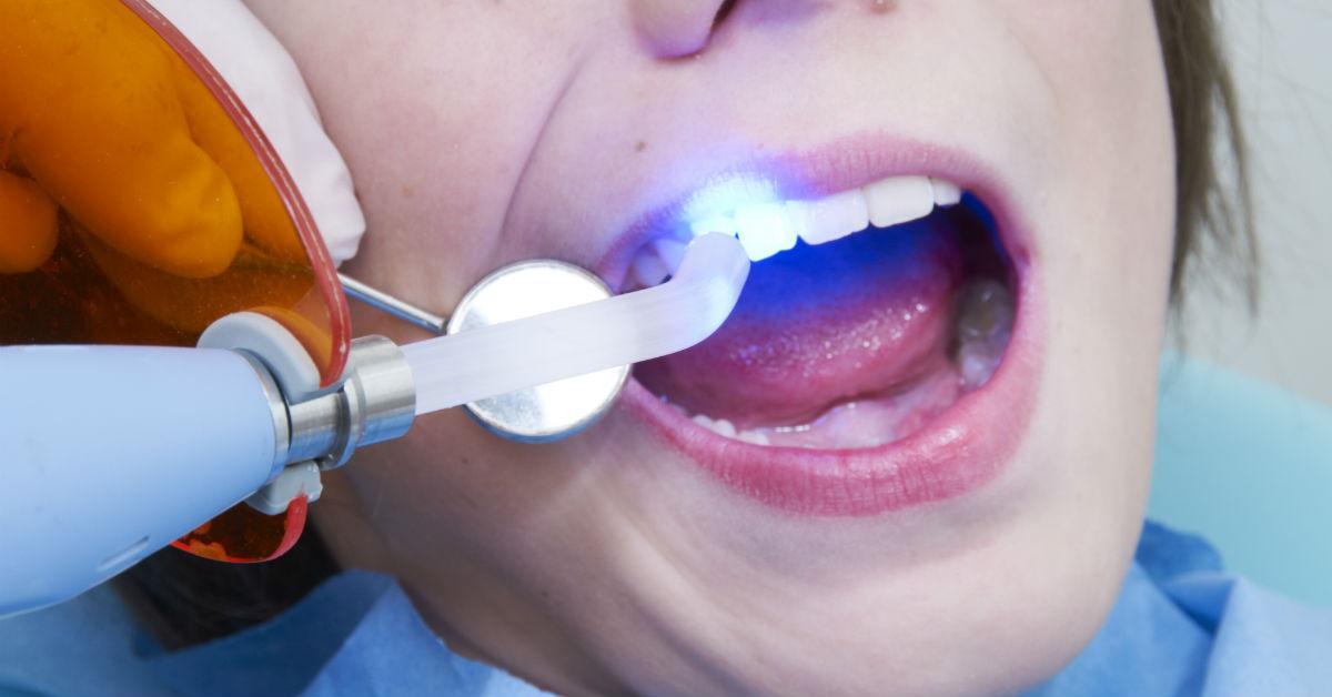 Dental Sealants Abbotsford