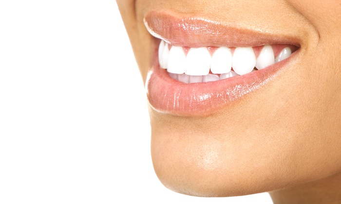 Professional Teeth Whitening Abbotsford