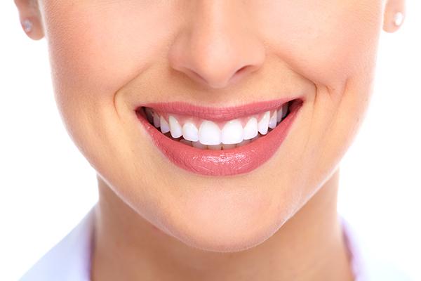 smile makeover abbotsford